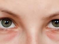Jak pozbyć się zasinień pod oczami?